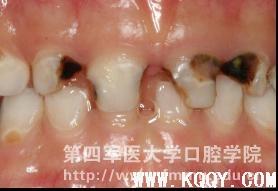 乳牙龋病充填治疗