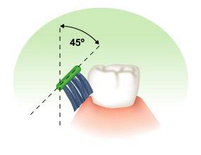 贝氏刷牙法详细步骤