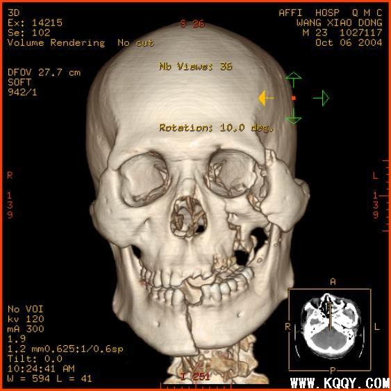 关于口腔多发性陈旧性骨折处理的讨论