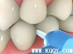 牙周护理六要素之三——牙间刷