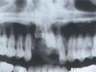牙槽突骨折X线图片