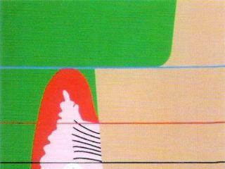 双线排龈线使用图解