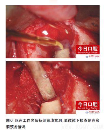根尖周显微外科手术