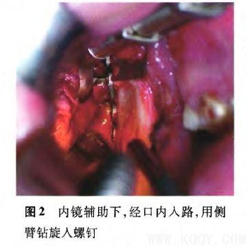 髁突骨折的手术治疗及内镜辅助技术