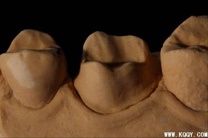 高质量牙体制备的提高方法——王义勇