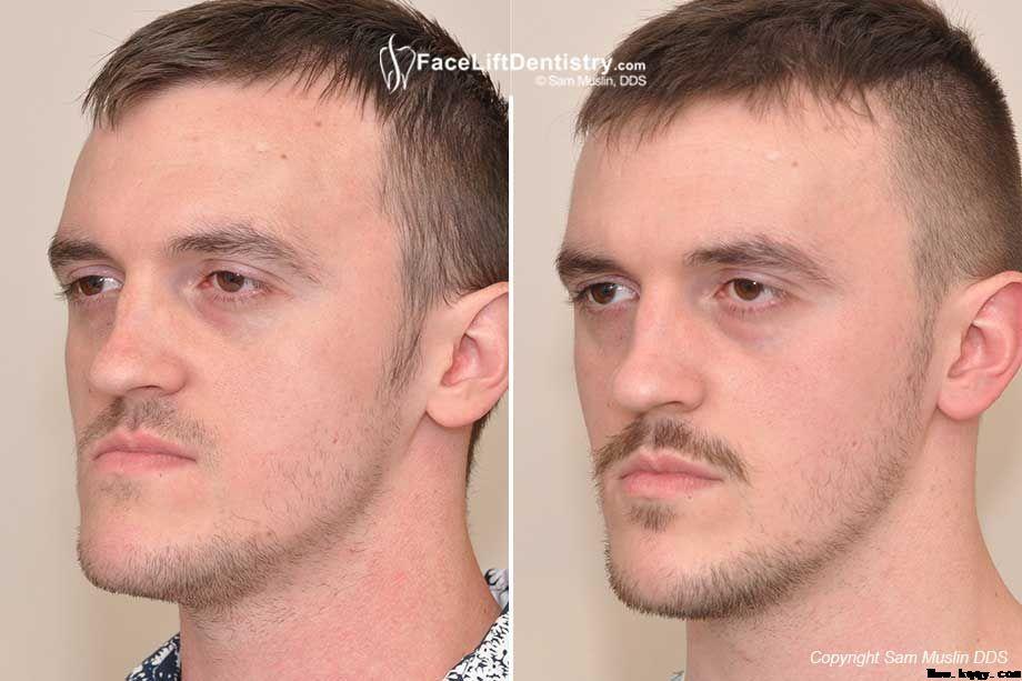 反颌病例underbite